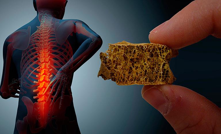 El consumo de los fructanos (moléculas de la fructosa o azúcar de la fruta) contenidos en el agave azul, en colaboración con la flora intestinal adecuada, promueve la formación de hueso nuevo, incluso en la presencia de la osteoporosis. Foto: Investigación & Desarrollo México.